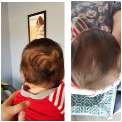 Hair Growth in Simi Valley CA