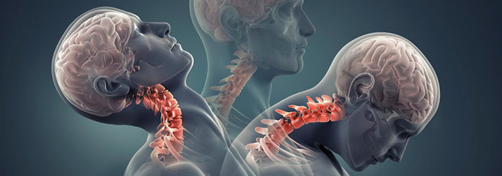Chiropractic Los Angeles CA Personal Injury